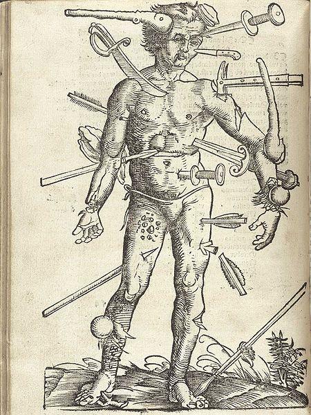 wound_man